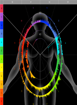 VeroVox-SpectralGraph